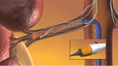 Денервация почечных артерий в лечении гипертонии